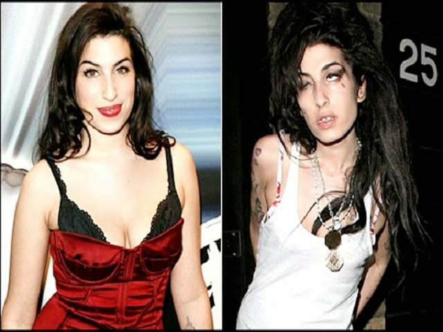 amy-winehouse-before-and-after