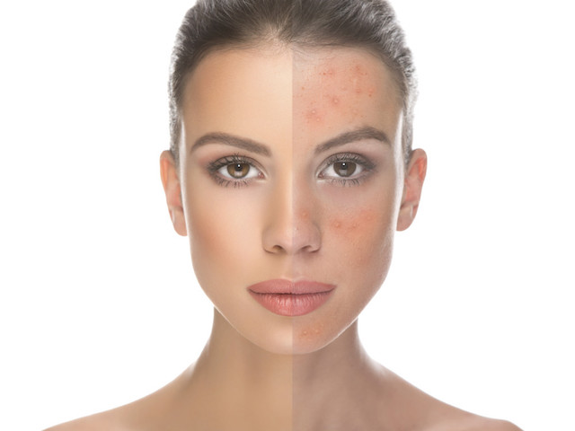 acne-rosacea-beauty-salons-perth1-1024x798